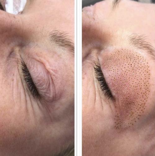 Scalp Micropigmentation and Fibroblasting